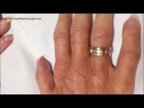scleroderma systemic sclerosis and crest syndrome - youtube, Cephalic Vein