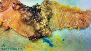Rezistentní škrob a rakovina tlustého střeva
