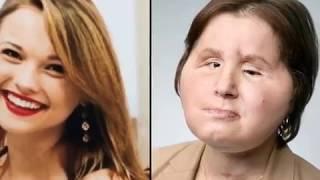 Американка стала самой молодой женщиной в мире которой сделали пересадку лица