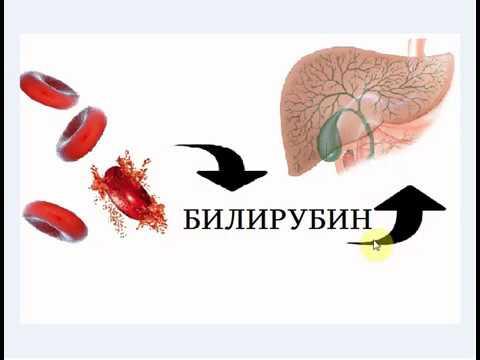 Повышенный билирубин в крови: причины, лечение