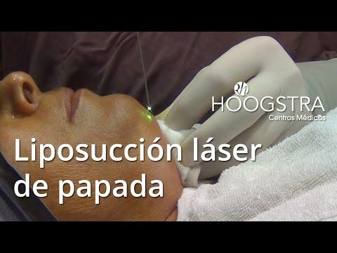 Liposucción láser de papada (15135)