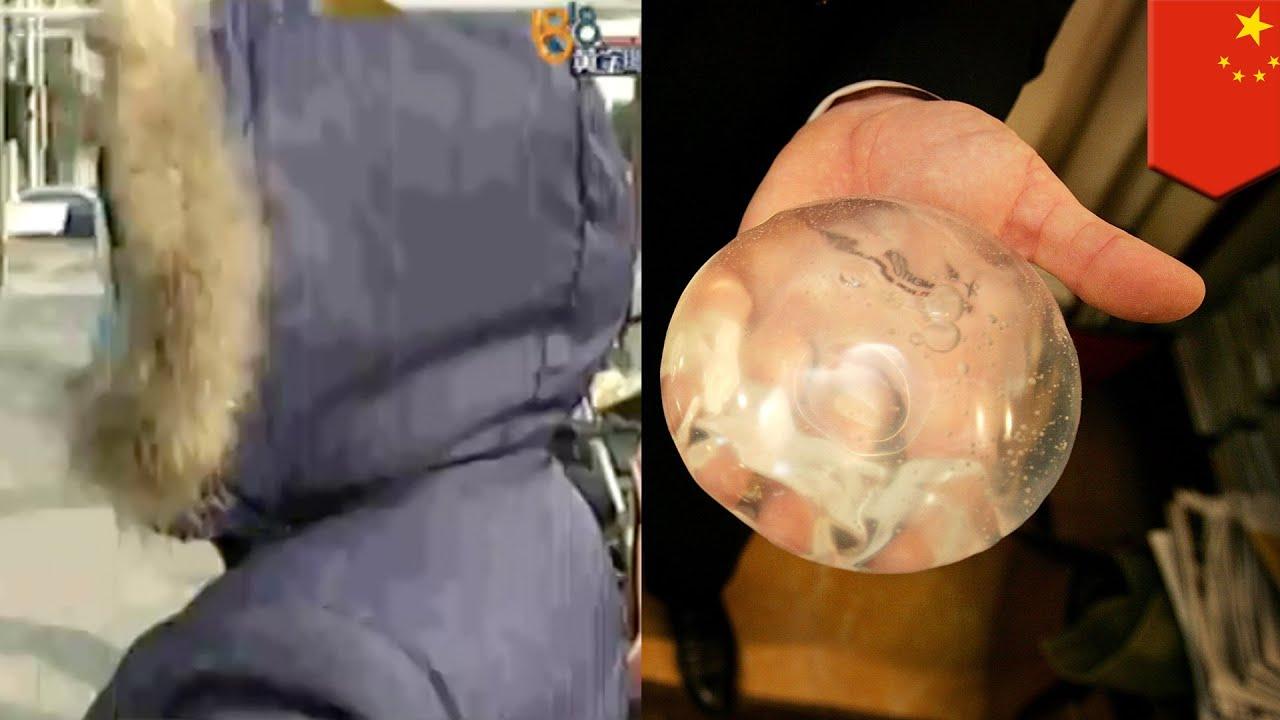 Operasi Plastik Gagal Wanita Ingin Percantik Buah Dada Tapi