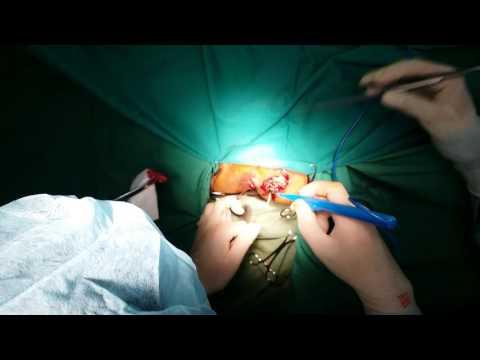 Phẫu thuật rò hậu môn BV TUỆ TĨNH