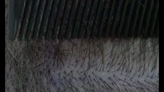 CIT Scar Grating -  Hair Transplant Results 2013