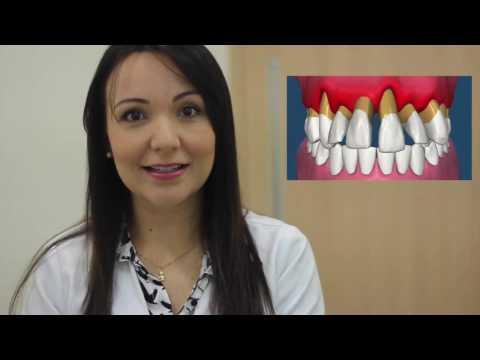 O que é protocolo? - Arcata Clínica Odontológica