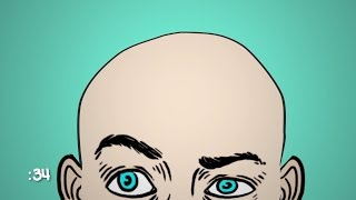 Why Do Some Men Go Bald?