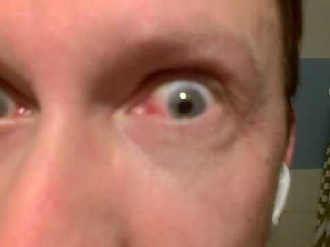 Silmäätekevä