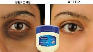 ভ্যাসলিন এর সাহায্যে চোখের নিচের কালো দাগ দূর করুণ চিরতরে রূপচর্চা টিপস | Beauty Tips bangla