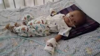 Anza dirawat di RS Dharmais, 1 Februari 2016.