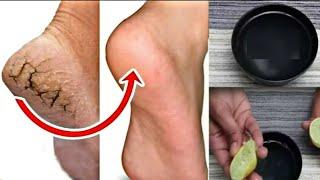 3 मिनिट्स में फटी एड़ि की दरारो को भर देगा ये नुस्खा- Crack Heel Treatment |