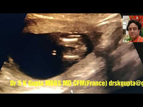Limb Examination of fetus in First Trimester Pregnancy, Tips and Tricks