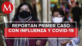 Este es el primer caso en de influenza y covid-19 en un mismo paciente