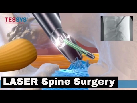 Laser Endoscopic Spine Surgery