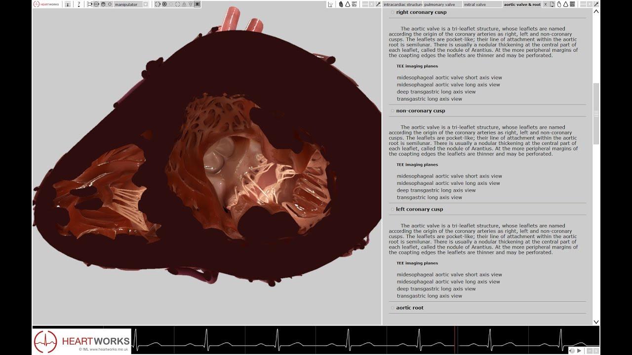 HeartWorks Cardiac Anatomy Module with Text Book - YouTube