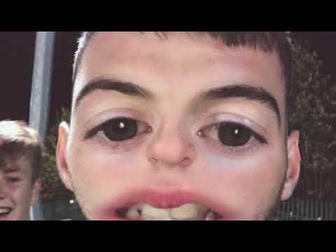 O'Dempseys v Kilcavan LaoisToday Snapchat Takeover