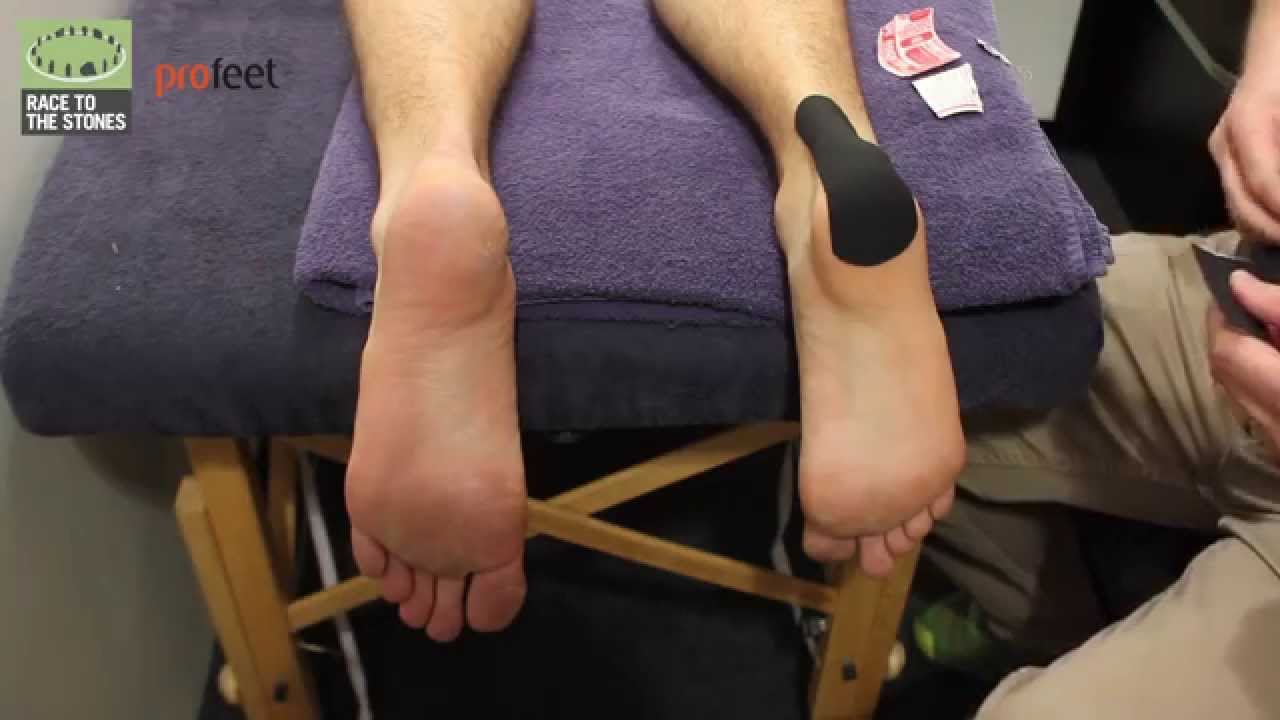 430efb4bd07149 What to do with a heel blister - YouTube