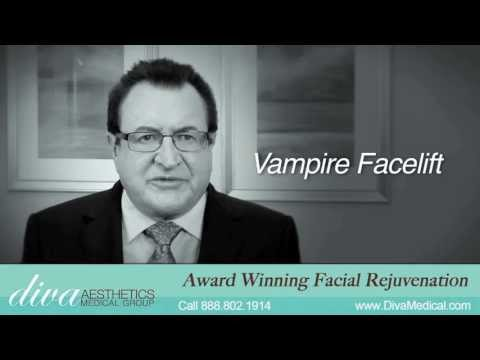 Vampire Facelift Garden Grove CA | CALL 888-802-1914 today | Facelift Garden Grove