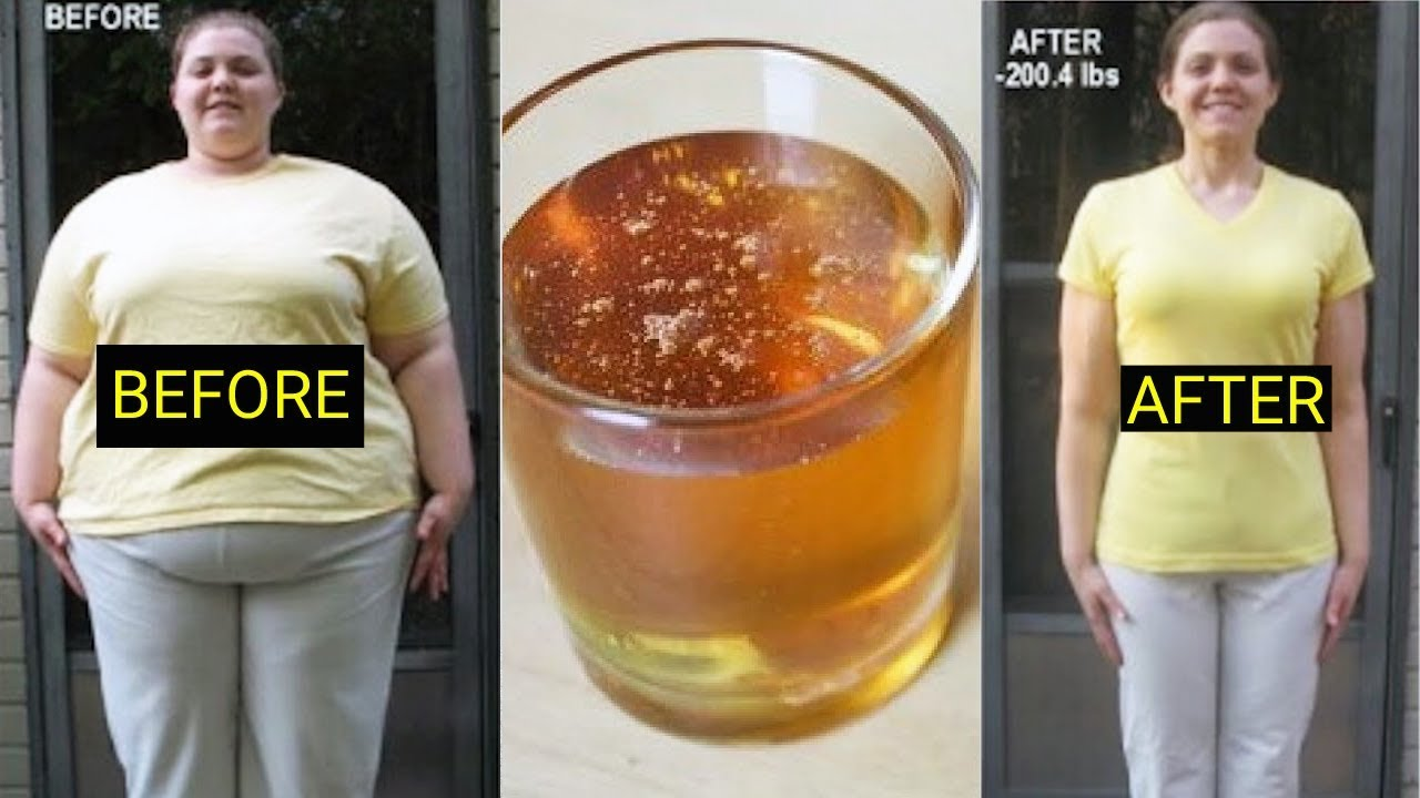 Cinnamon And Honey For Weight Loss – How It Works ...