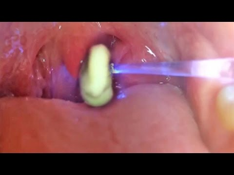 World's Greatest Tonsil Stone Removals (2)