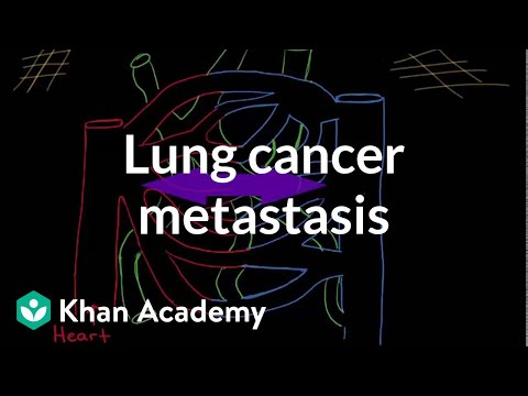 Lung cancer metastasis
