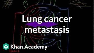 Lung cancer metastasis