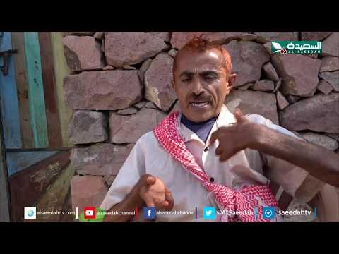 سنابل الخير - مصاب بشلل نصفي ويعاني ابناءه من عدة امراض 11-11-2019م
