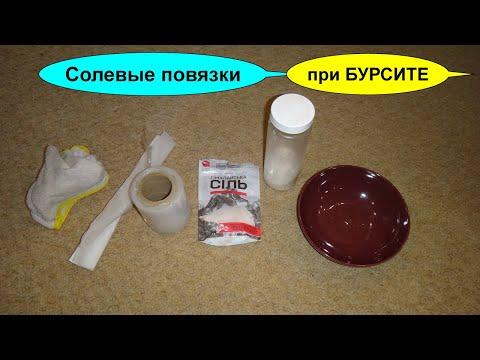 Бурсит локтевого сустава лечение в домашних условиях народными