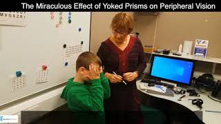 The Miraculous Effect of Yoked Prisms on Limited Peripheral Vision