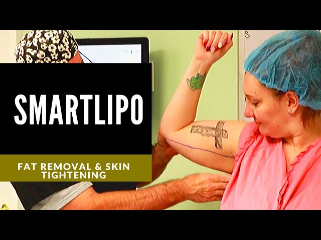 SmartLipo to the Arms | Smart Liposuction of the triceps by Cyanosure | Dr. Thomas E. Young, MD