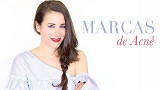 Como eliminar marcas de Acné y cicatrices ( mi experiencia) by Secrets and Colors, Miriam Llantada