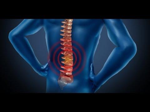 síntomas de cáncer de próstata en la columna vertebral
