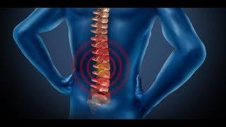 La dolor las cervical lesión columna piernas en en