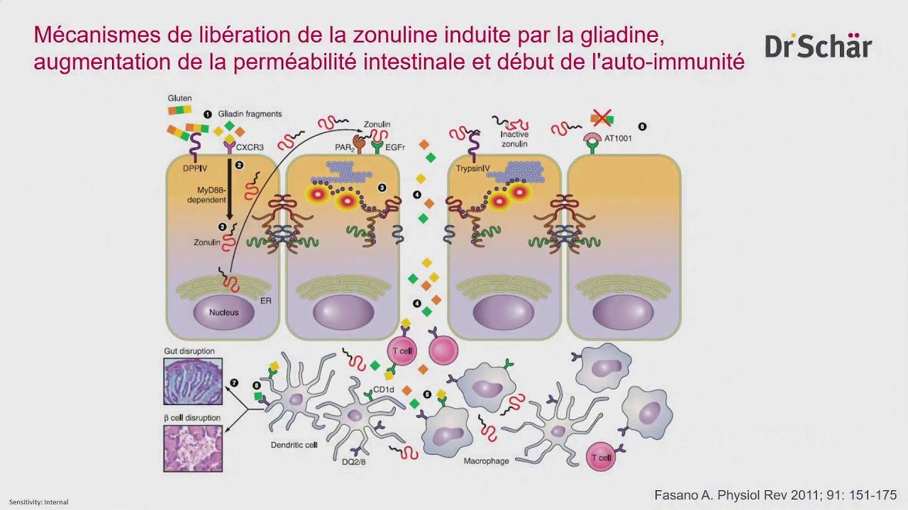 Troubles liés au gluten (TLG) et Syndrome de l'intestin irritable (SII)