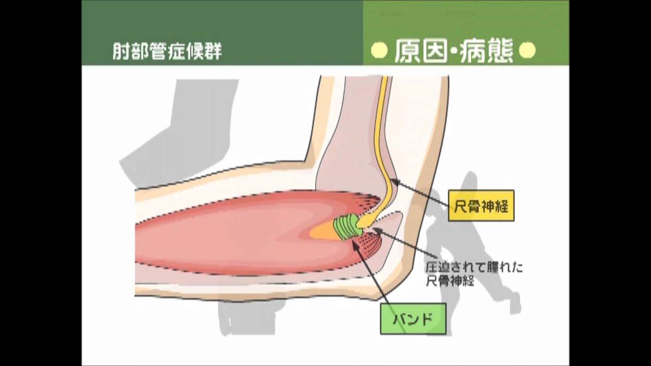 部 管 症候群 肘