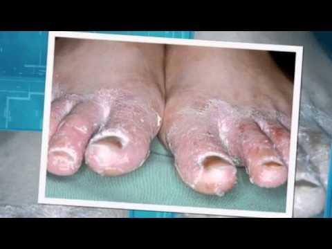 Ciuperca piciorului care apare anual