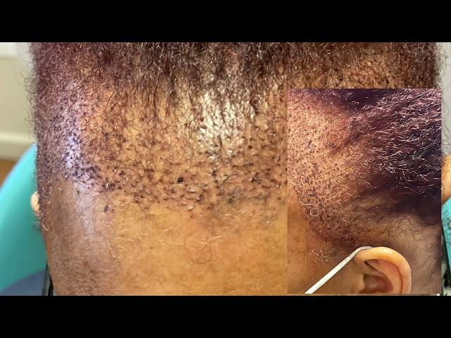 Dallas Ethnic Female Hair Transplant Testimonial