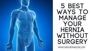 The Five Best Ways to Manage an Inguinal Hernia Without Surgery