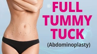 Full Tummy Tuck Explained (Abdominoplasty) - Edelstein Cosmetic - Toronto Thumbnail