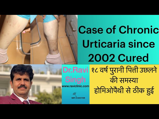 Chronic Urticaria since 2002 Cured with Homeopathy Dr Ravi Singh