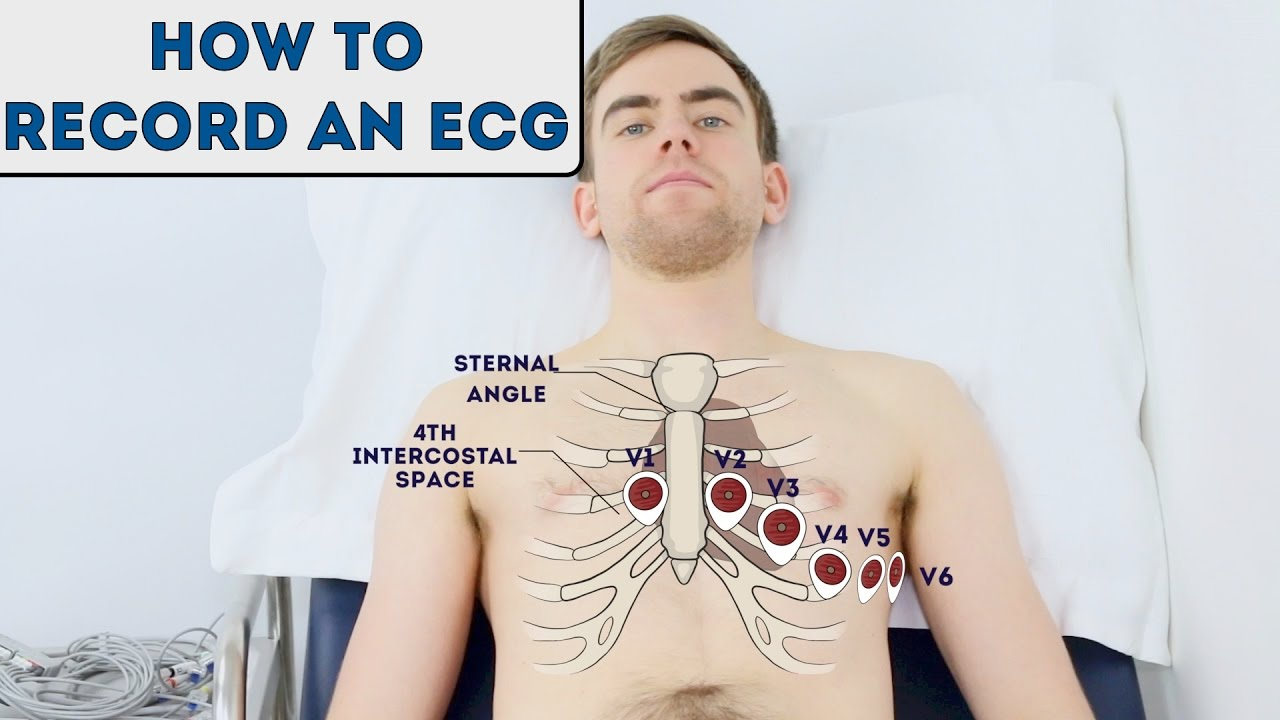 How to record an ECG - OSCE Guide