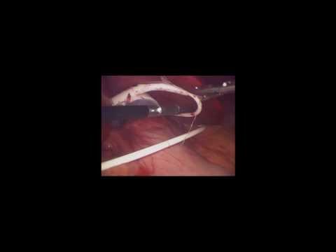 Αφαίρεση Γαστρικού Δακτυλίου - Σωτήρης Γαβριήλ