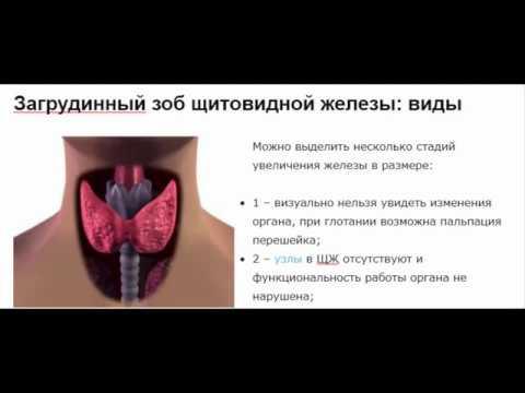 Загрудинный зоб щитовидной железы: почему формируется