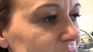 age erased instant face lifting serum watch the wrinkles disappear