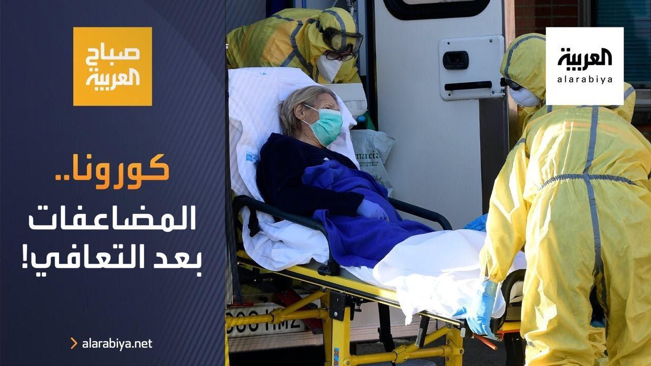 صباح العربية | دراسة تتحدث عن مضاعفات كورونا حتى بعد التعافي  - نشر قبل 3 ساعة