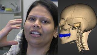 What Causes TMJ Lockjaw?