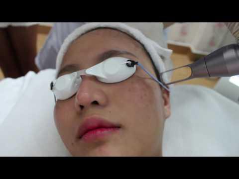 Cận Cảnh Quá Trình điều Trị Nám, Tàn Nhang Công Nghệ YAG LASER (VENUS - HÀN QUỐC)