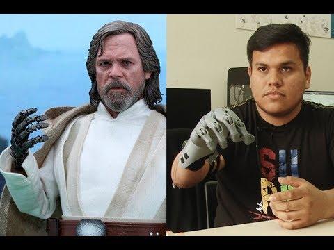 "Peruvian ""Luke Skywalker"" creates a low cost prosthesis"