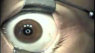 Epi-Lasek Surgery by Dr Chynn