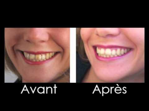 blanchiment des dents prix chez le dentiste