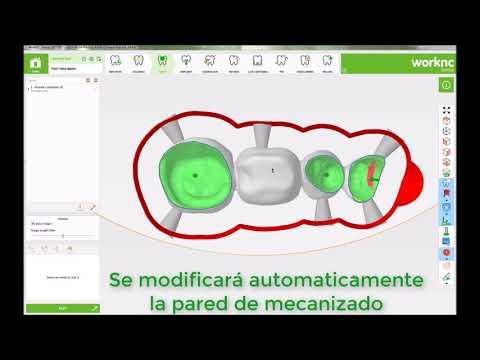 WorkNC Dental. Novedades 2017 R2